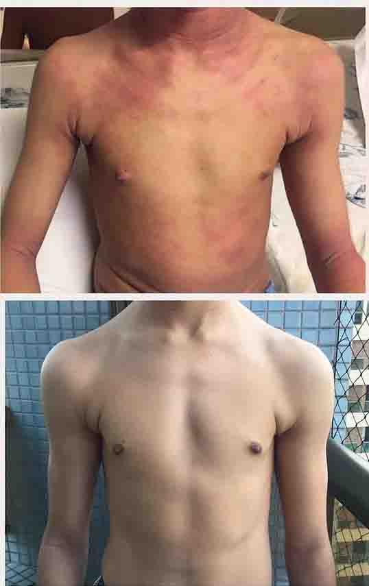 atopični dermatitis -11 mesecev na protokolu