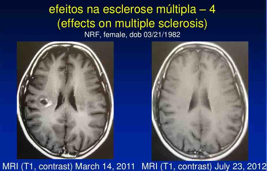 cicero-galli-coimbra-vitamina-d-no-tratamento-de-esclerose-mltipla-11-1024