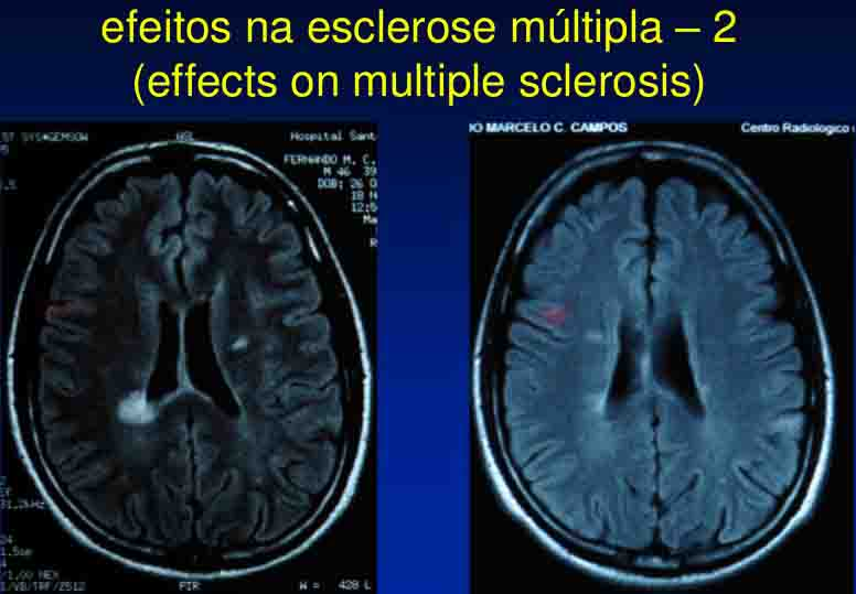 cicero-galli-coimbra-vitamina-d-no-tratamento-de-esclerose-mltipla-9-1024