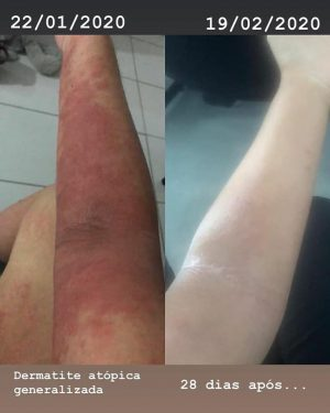 atopični_dermatitis